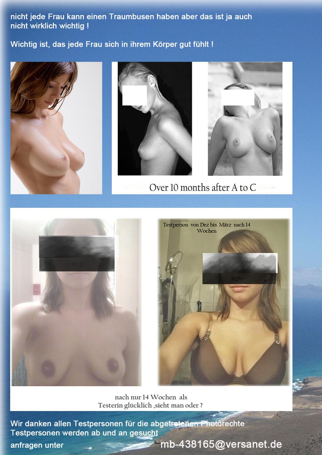Die Erhöhung der Brust von der Operation in krasnojarske