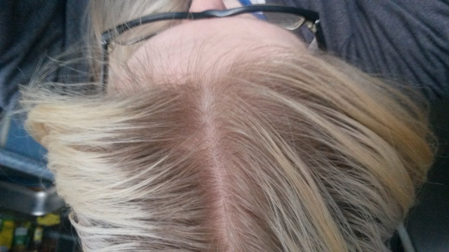 Haare kaputt bis zum ansatz