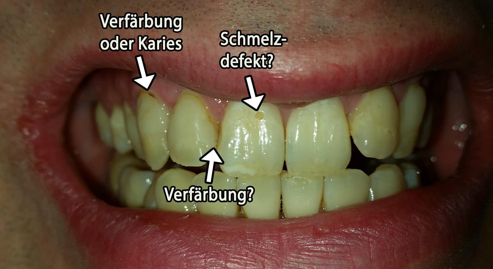 Fragen zu Zahnzustand in meiner Altersgruppe und Zahnfarbe